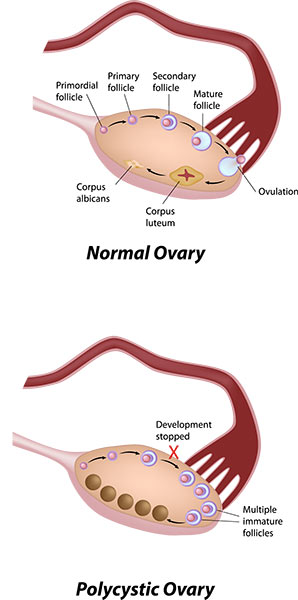 Polycystic Ovarian Syndrome - what is happening in the ovary