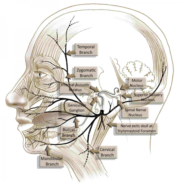 Acupuncture for Bell's Palsy (Facial Paralysis)