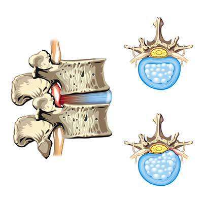 sciatica pain from nerve impingement