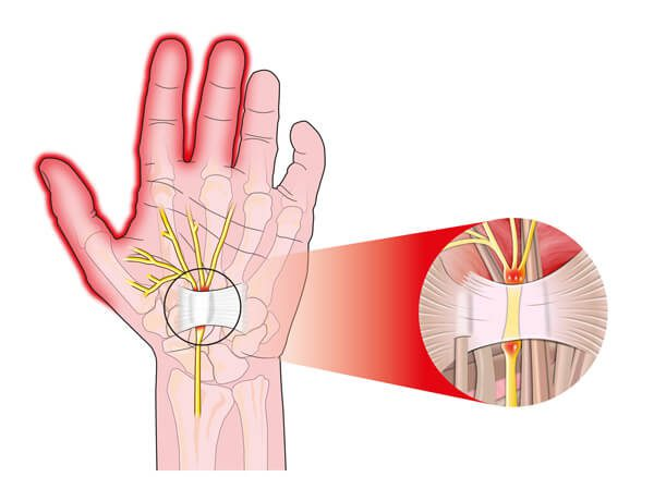 Acupuncture more effective than ibuprofen for carpal tunnel syndrome